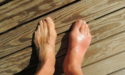 Alternative Treatments for Gout: Cures for Healing